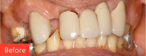 before dental implant 1
