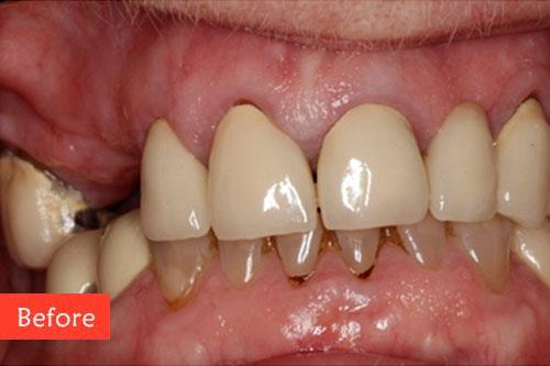before dental implant 4