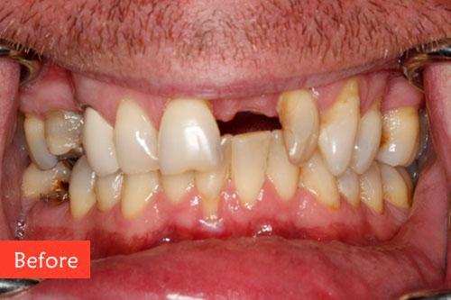 before dental implant 5