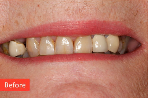 before dental implants 6
