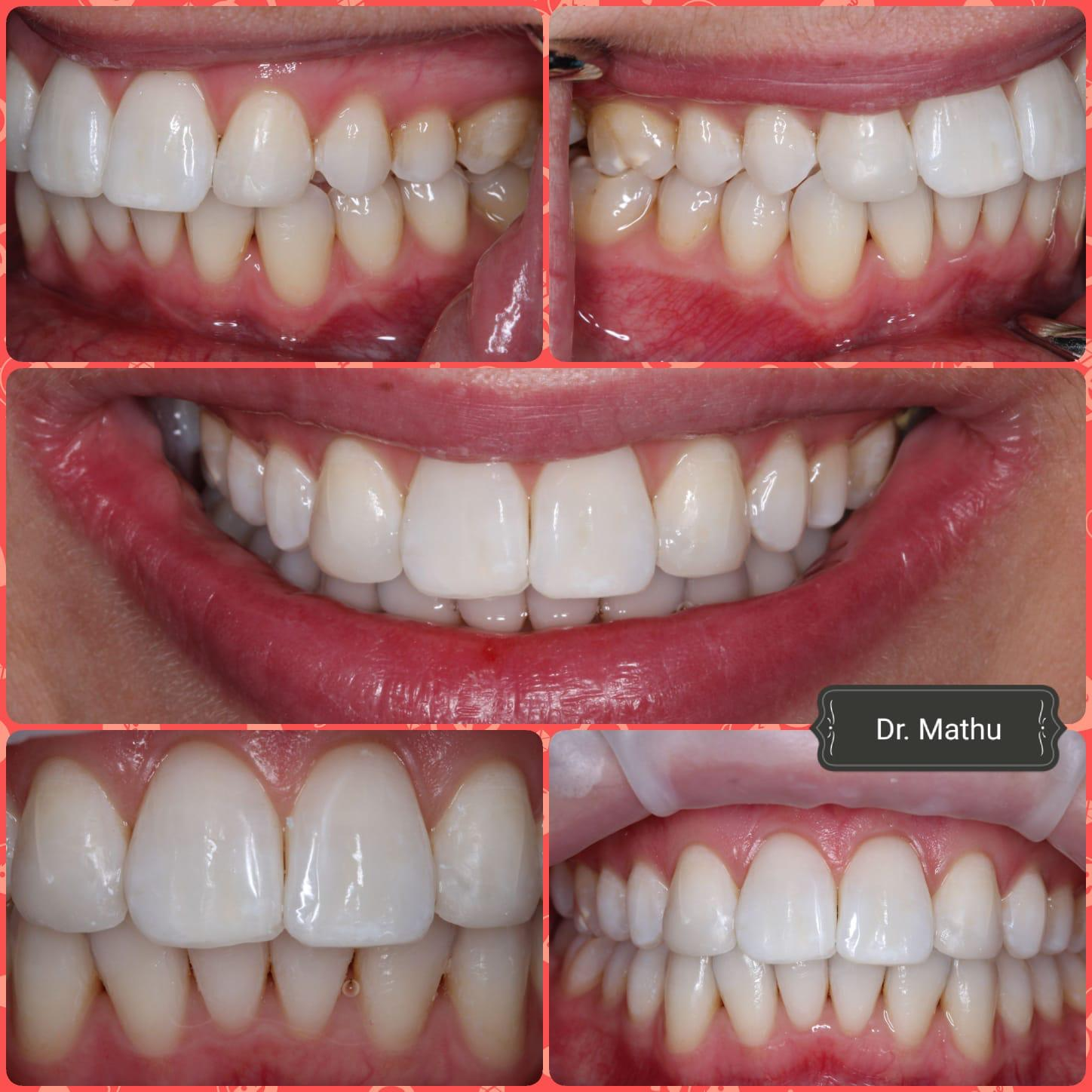 Laser Teeth Whitening Cost Uk